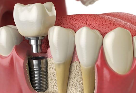 Best-Single-Tooth-dental-Implant-New-Delhi