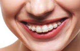 Ceramic-Braces-Citylife-Dental