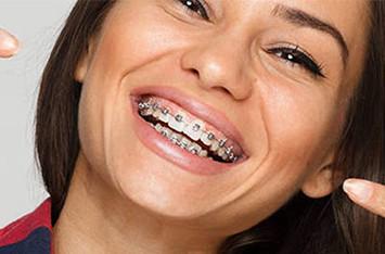 Dental-Braces