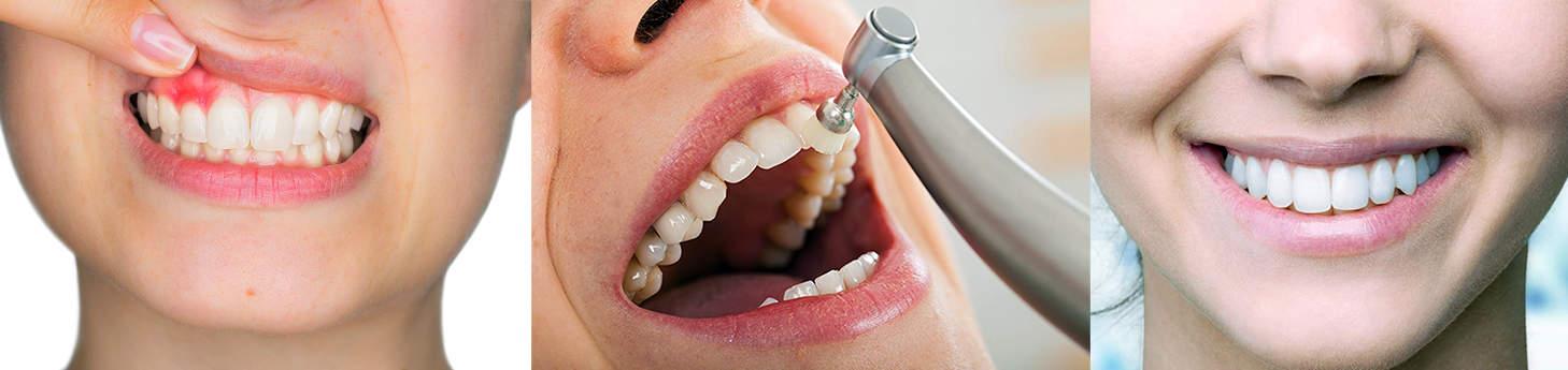 Dental-scaling-Root-planing-New-Denhi-Best-Dentist