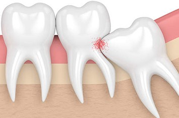 Impacted-Tooth