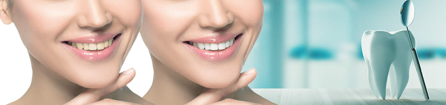 Teeth-Whitening-bleaching