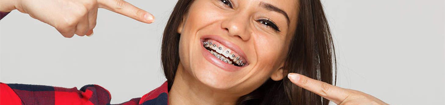 dental-braces-new-delhi-best-dentist