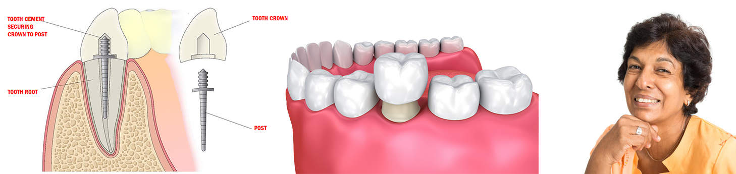 Crown-Post-and-Core-Dentist